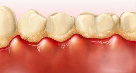 Chảy máu chân răng khi đánh răng: Dấu hiệu chớ coi thường! - 2