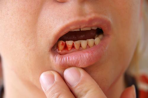 Chảy máu chân răng khi đánh răng: Dấu hiệu chớ coi thường! - 3