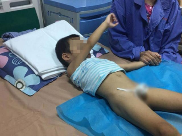 Dồn dập trẻ từ Hưng Yên đến viện khám sùi mào gà sau cắt bao quy đầu