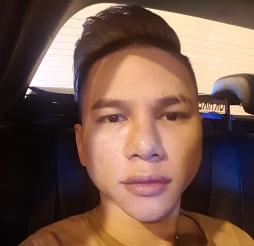 Hành trình biến dạng mặt vì thẩm mỹ của Hoàng Tôn - 10