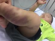 Tin tức trong ngày - Bé trai hơn 1 tuổi bị đánh đập bầm tím, tổn thương bộ phận sinh dục?
