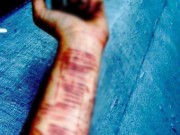 Tin tức trong ngày - Mắc chứng bệnh lạ, nữ sinh cắt 16 vết trên cánh tay không thấy đau