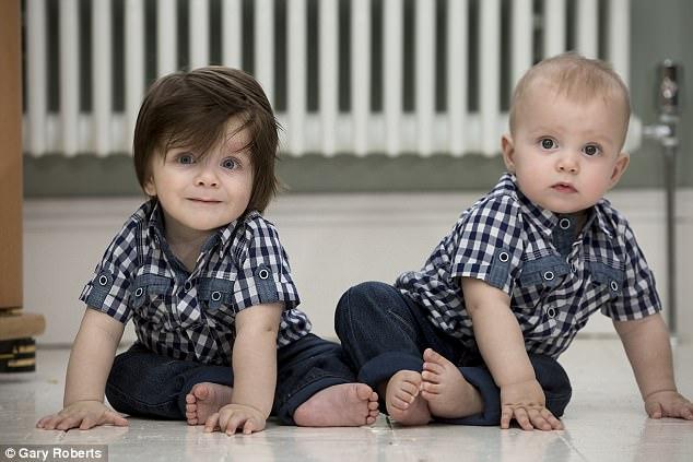 Anh: Cặp sinh đôi giống nhau mọi thứ trừ bộ tóc - ảnh 1