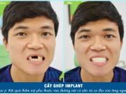 Chàng trai Thái Bình thoát kiếp mất răng sau ca cấy ghép ly kỳ
