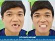 Chàng trai Quảng Ngãi thoát kiếp mất răng sau ca cấy ghép ly kỳ