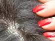 Tất tần tật về bệnh vẩy nến da đầu mà bạn chưa biết