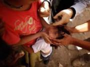 An ninh Xã hội - Bé gái 11 tuổi đeo vàng bị cướp giật phăng