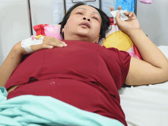 """""""Sư tử"""" Kim Loan The Voice: Giọng hát máu lửa đã tắt vì bệnh ung thư gan"""