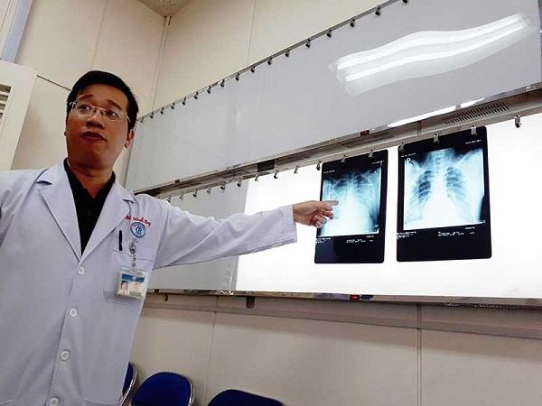 Thực hư virus lạ gây chết người - 1