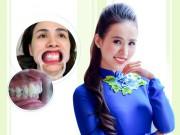 Làm đẹp - Trào lưu răng khểnh và quan niệm Đông – Tây