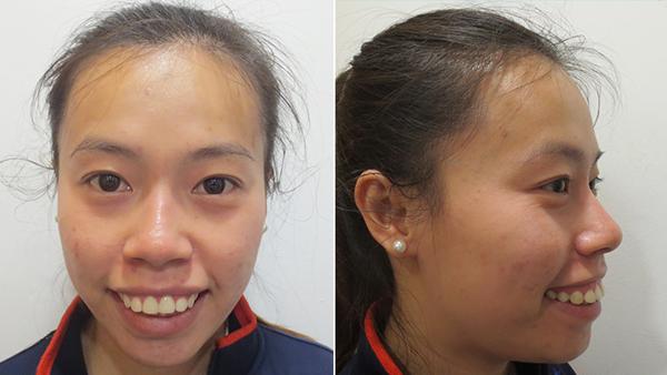 Cô gái Tiền Giang được mẹ ủng hộ hết mình khi phẫu thuật hàm hô - 2