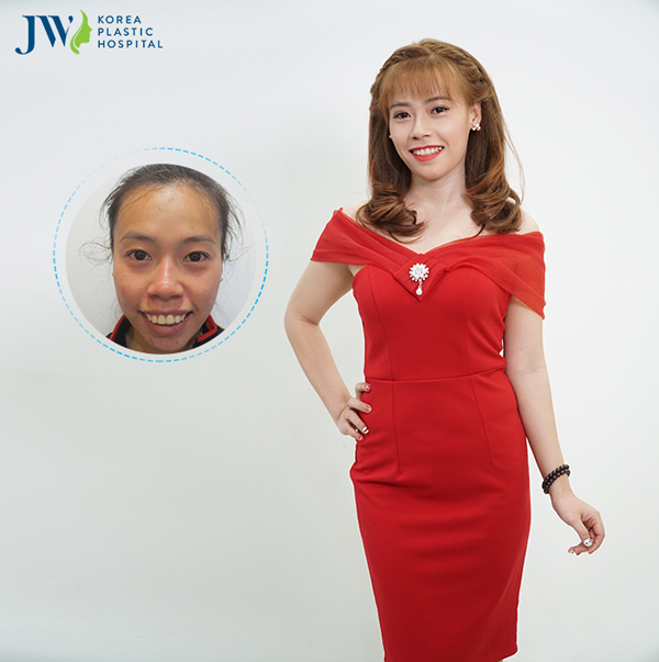 Cô gái Tiền Giang được mẹ ủng hộ hết mình khi phẫu thuật hàm hô - 3