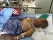 Bị chó tấn công, người đàn ông thiệt mạng sau 2 tháng bất tỉnh