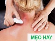 Tin tức sức khỏe - Dễ dàng thoát khỏi đau đầu, đau mỏi gáy nếu người cao huyết áp biết cách này