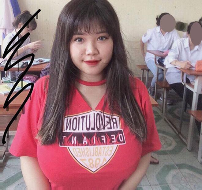 Nỗi khổ của cô gái Hải Dương mang vòng 1 hơn 110cm - 1