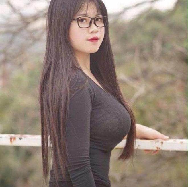 Nỗi khổ của cô gái Hải Dương mang vòng 1 hơn 110cm - 2