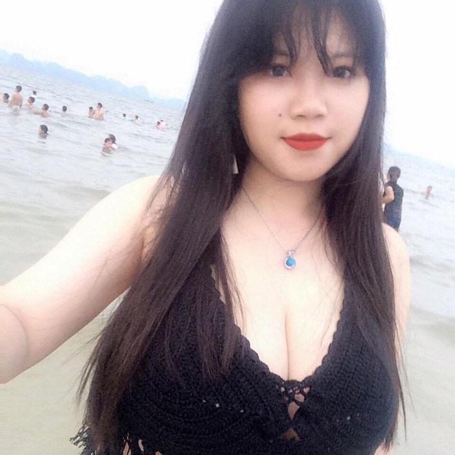 Nỗi khổ của cô gái Hải Dương mang vòng 1 hơn 110cm - 3