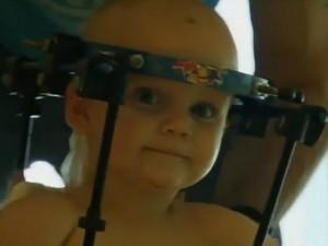 Phi thường - kỳ quặc - Video: Sức sống thần kỳ của cậu bé được nối lại đầu