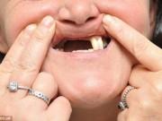 """Sức khỏe đời sống - Mất hàm răng cửa vì tẩy trắng răng ở nha sĩ """"dởm"""""""