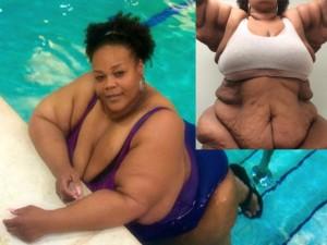 Làm đẹp - Choáng với bộ da thừa nặng 1 tạ sau khi giảm cân