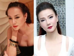 Làm đẹp - Dương Yến Ngọc: 'Phẫu thuật thẩm mỹ dễ bị nghiện lắm'