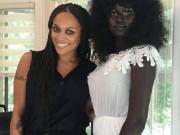 Bạn trẻ - Cuộc sống - Cô gái trẻ có làn da đen kỳ lạ nhất thế giới