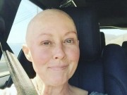 Đời sống Showbiz - Fan xót xa sao nữ bị hủy hoại nhan sắc vì mắc ung thư