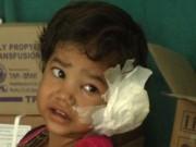 Phi thường - kỳ quặc - Kinh hãi phát hiện 80 con sâu trong tai bé gái 4 tuổi