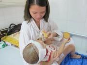 Sức khỏe đời sống - Bé gái 2 tuổi bị lột toàn bộ da đầu vì tai nạn giao thông