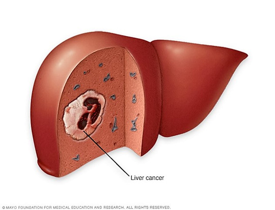 Người béo phì, đái tháo đường đề phòng ung thư gan - 1
