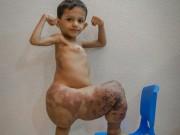 Phi thường - kỳ quặc - Bé trai có chân to gấp 4 lần bình thường cứ nghĩ mình là siêu nhân