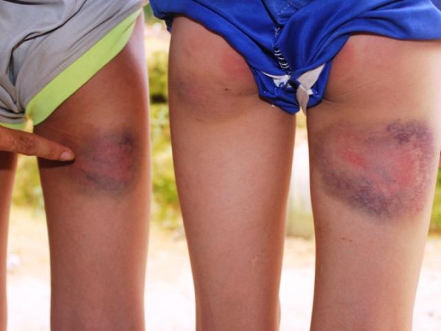 Kỷ luật cảnh cáo thầy giáo đánh bầm mông 6 học sinh