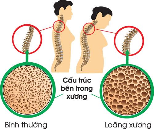 Loãng xương – Nên phòng bệnh trước khi quá muộn. - 1