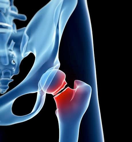 Loãng xương – Nên phòng bệnh trước khi quá muộn. - 3
