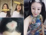 Bạn trẻ - Cuộc sống - Gặp lại cô gái bay cả da đầu vì ăn ngô bằng máy khoan