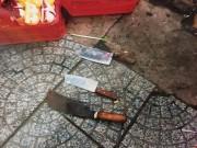 An ninh Xã hội - Lấy lời khai 2 người bị truy sát trước cổng BV Từ Dũ