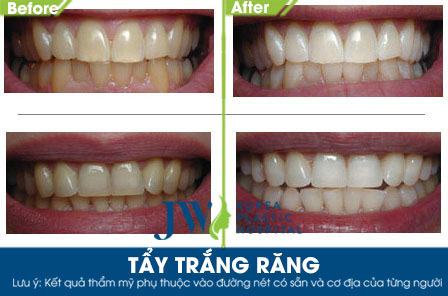 Tạm biệt hàm răng ố vàng nhanh chóng chỉ sau 30 phút - 3