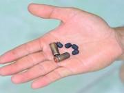 Chiến sỹ CA bị kẻ trốn nã nguy hiểm bắn trọng thương