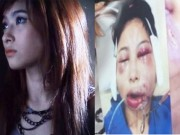 Làm đẹp - Người mẫu Thái trẻ đẹp mặt méo lệch vì phẫu thuật hỏng
