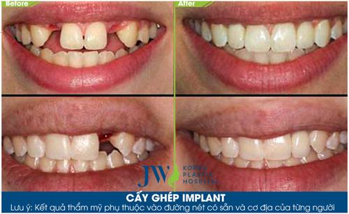 """""""Implant tức thì"""" – phục hồi răng mất sau 48 giờ - 3"""