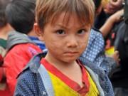 Bạn trẻ - Cuộc sống - Phía sau bức ảnh em bé Mông có gương mặt nhem nhuốc