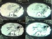 Sức khỏe đời sống - Kì lạ: Bác sĩ hi vọng khối u của bệnh nhi là u ác tính