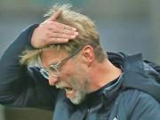 """Bóng đá - Klopp nguy cơ bị sa thải: Liverpool chọn nhầm """"thiên tài giả"""""""
