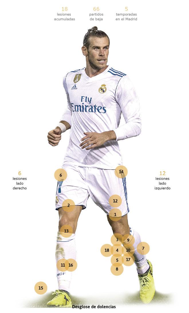 """Siêu """"thương binh"""" Real, Gareth Bale: Bóng vàng chưa đến đã lo nghiệp tàn"""