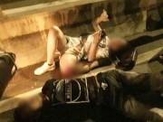 Cô gái trẻ bị gãy gập chân vẫn bình tĩnh nằm bấm điện thoại