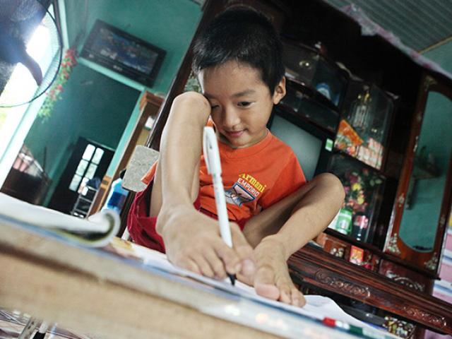 Cậu bé 7 tuổi đẹp như thiên thần không có tay từ trong bụng mẹ
