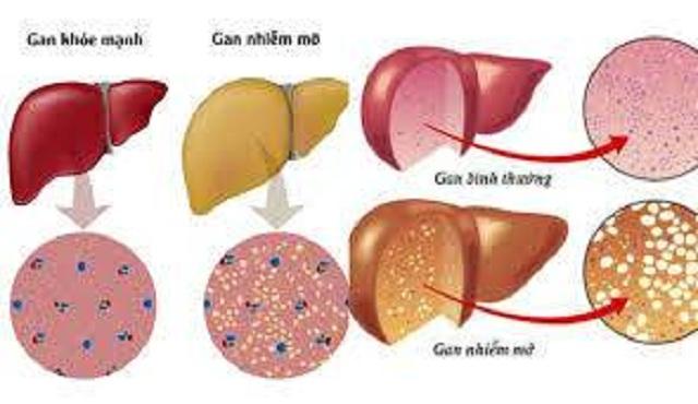 Chuyên gia khuyến cáo 10 điều cần làm khi bị gan nhiễm mỡ - 2