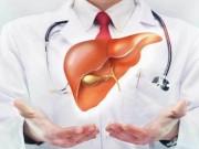 Chuyên gia khuyến cáo 10 điều cần làm khi bị gan nhiễm mỡ