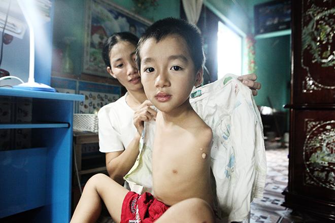 Ảnh - Clip: Đôi chân diệu kì của cậu bé 7 tuổi không tay - ảnh 1