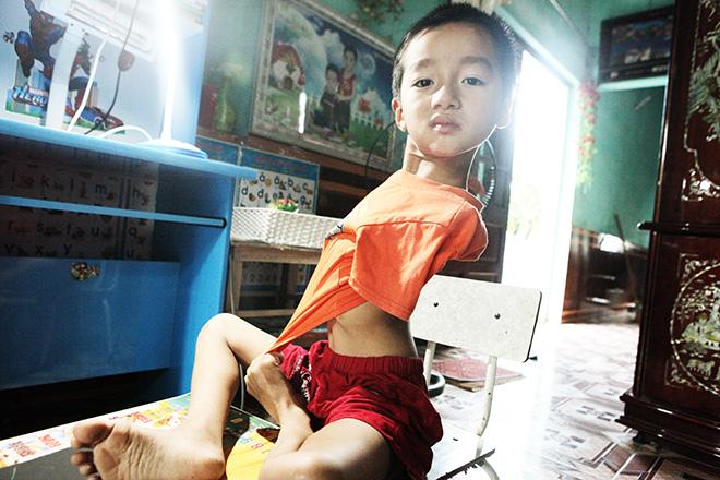 Ảnh - Clip: Đôi chân diệu kì của cậu bé 7 tuổi không tay - ảnh 3